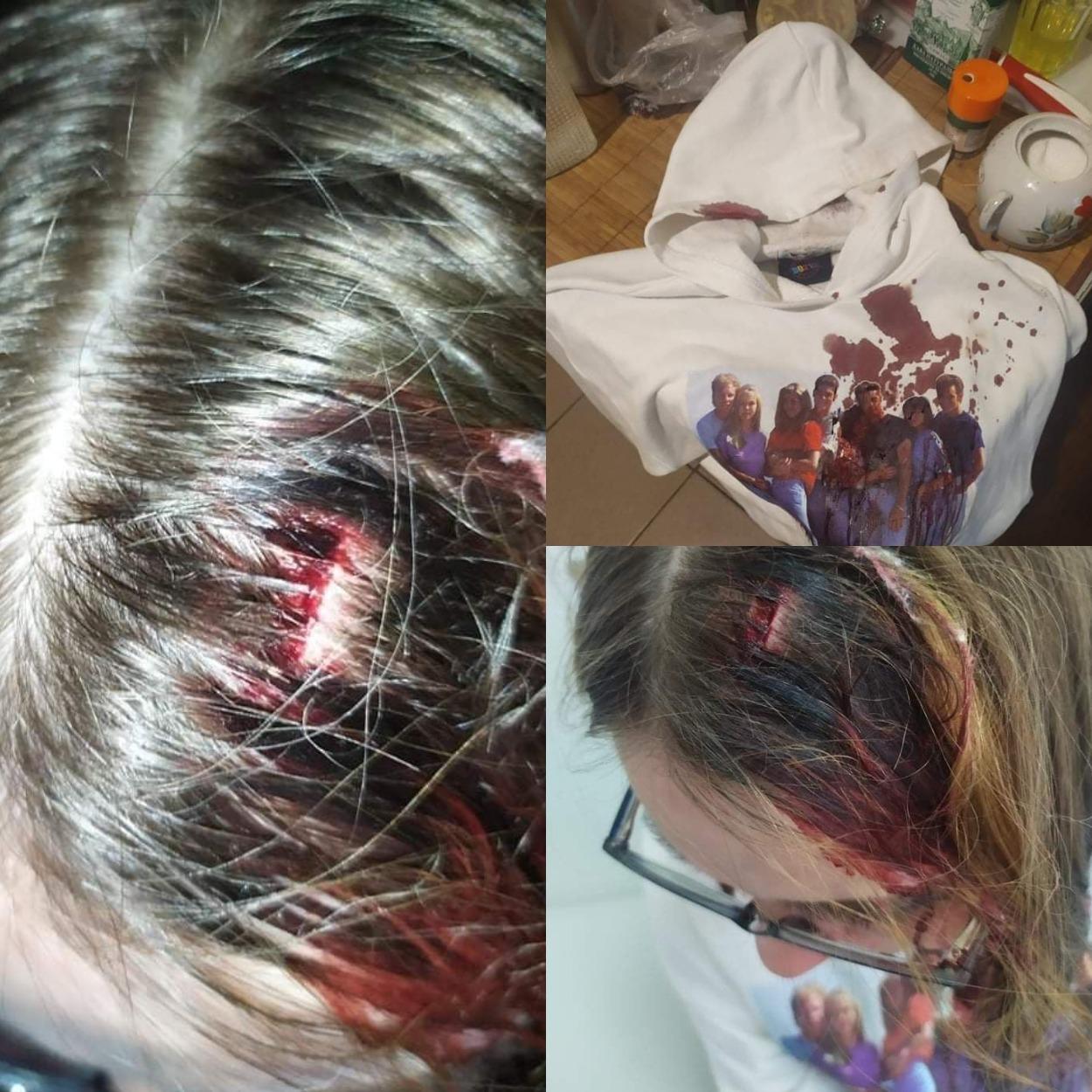 Рана Кристины и ее кофта в крови/ фото: fb Татьяны Журинской